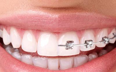 Ortodoncia Brackets en Móstoles y Getafe