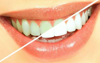 Blanqueamiento Dental en la Clínica de la Dra. Cuadrado.
