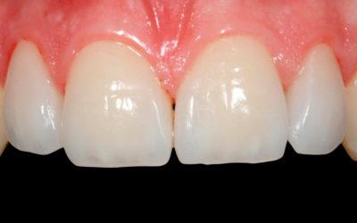 Carillas en la clinica dental de la Dra Cuadrado