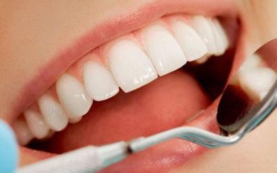 Coronas dentales en la clínica dental de la Dra. Cuadrado de Móstoles y Getafe