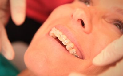 Ortodoncia dental en Móstoles y Getafe