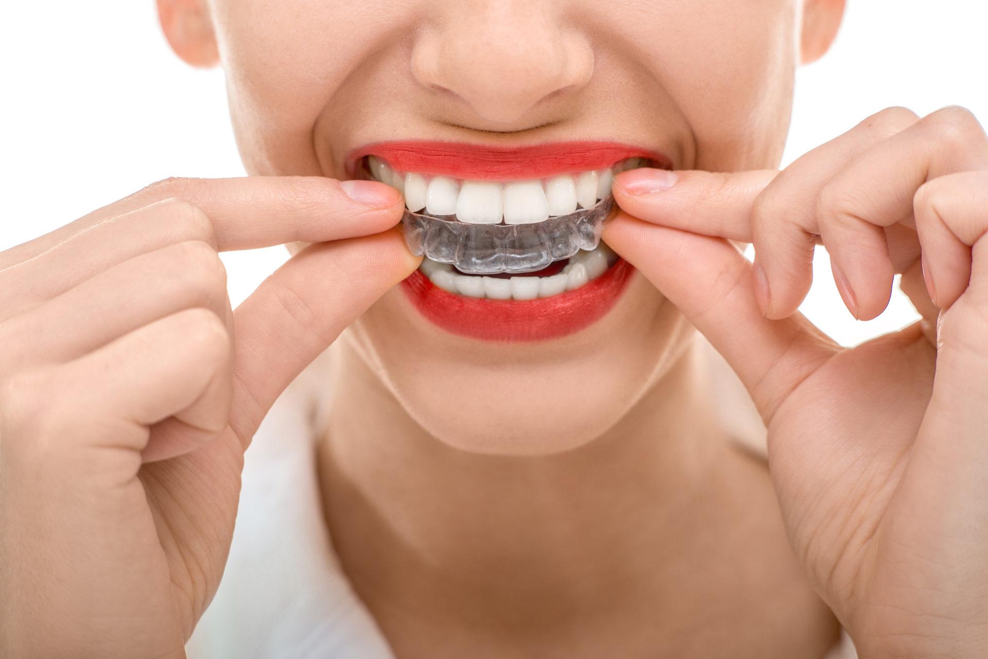 ¡Benefíciate de nuestras nuevas promociones dentales durante Septiembre y Octubre!