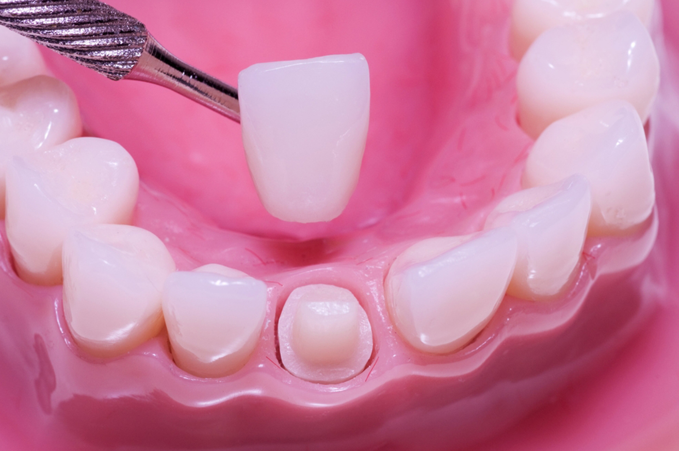 ¿Sabes qué tipos de Coronas Dentales puedes encontrarte actualmente?