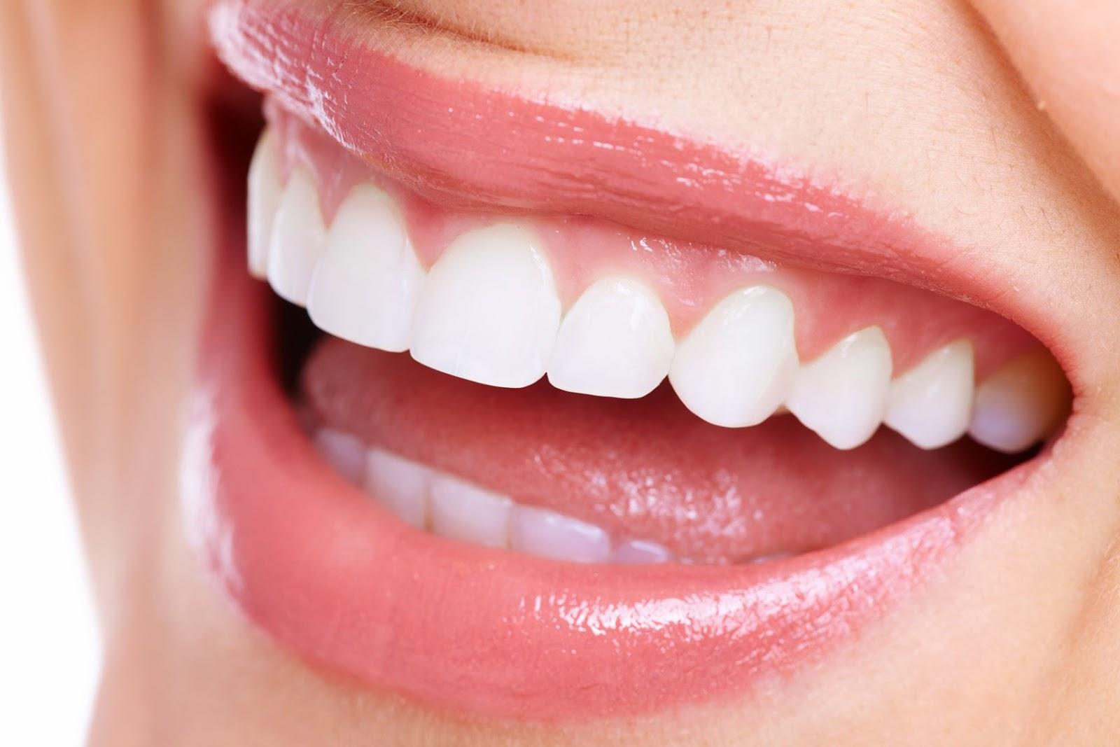 Más clases de Coronas Dentales, ventajas e inconvenientes