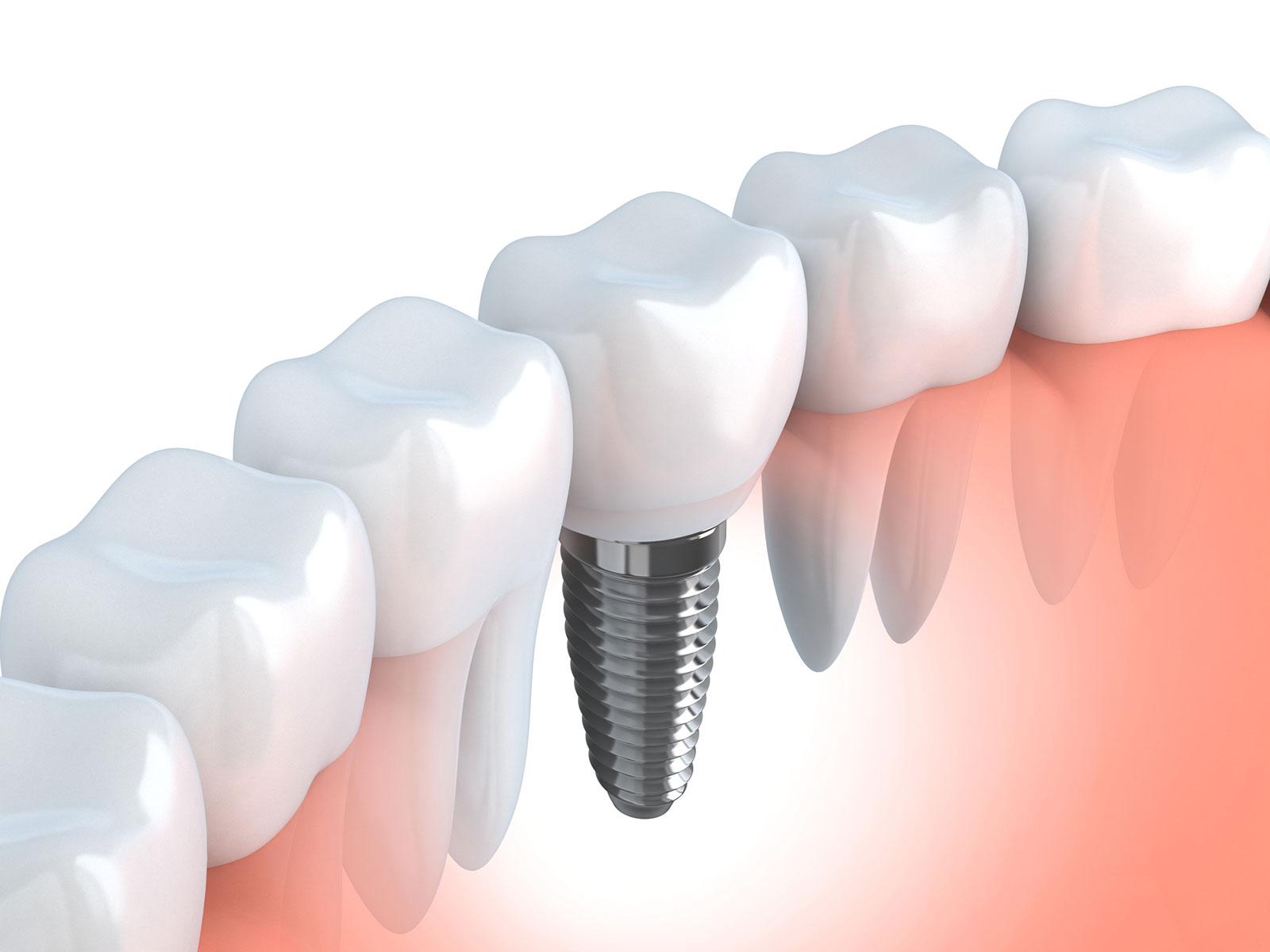 ¿Vives en Móstoles y necesitas un implante dental de calidad?