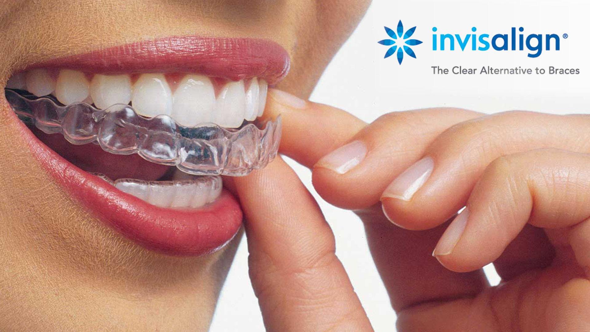Consigue tu Ortodoncia Invisalign al mejor precio con nuestra Promoción de Febrero