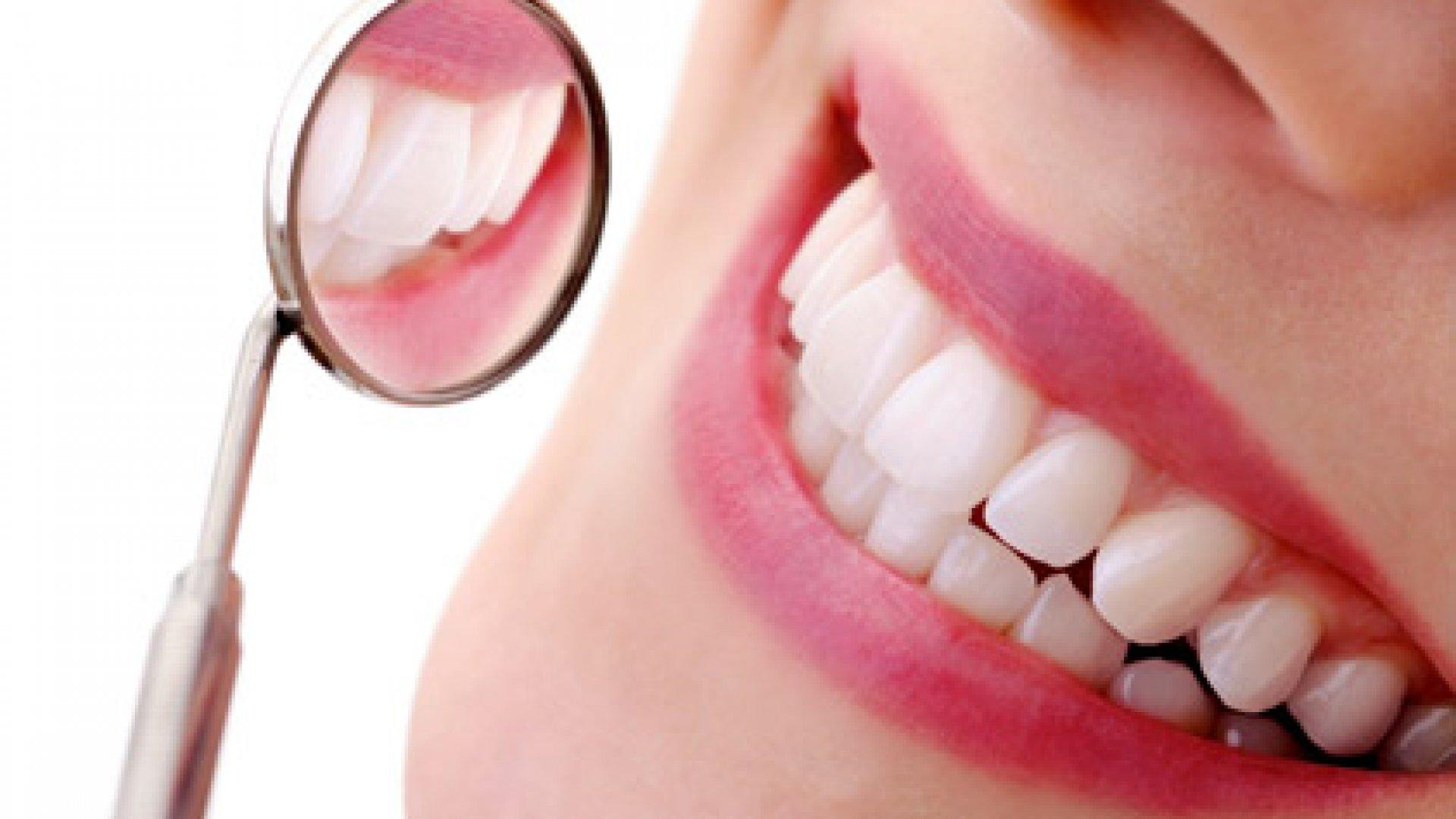 Coronas dentales: una solución increíblemente versátil para tus dientes