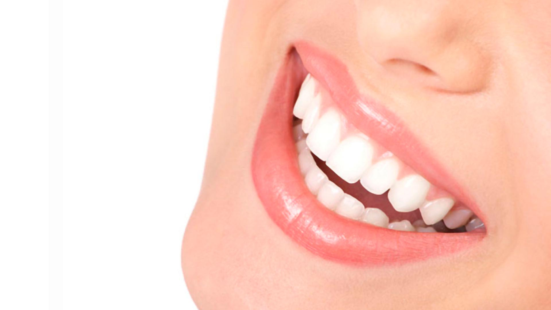 Coronas y puentes fijos, la solución a muchos de tus problemas dentales