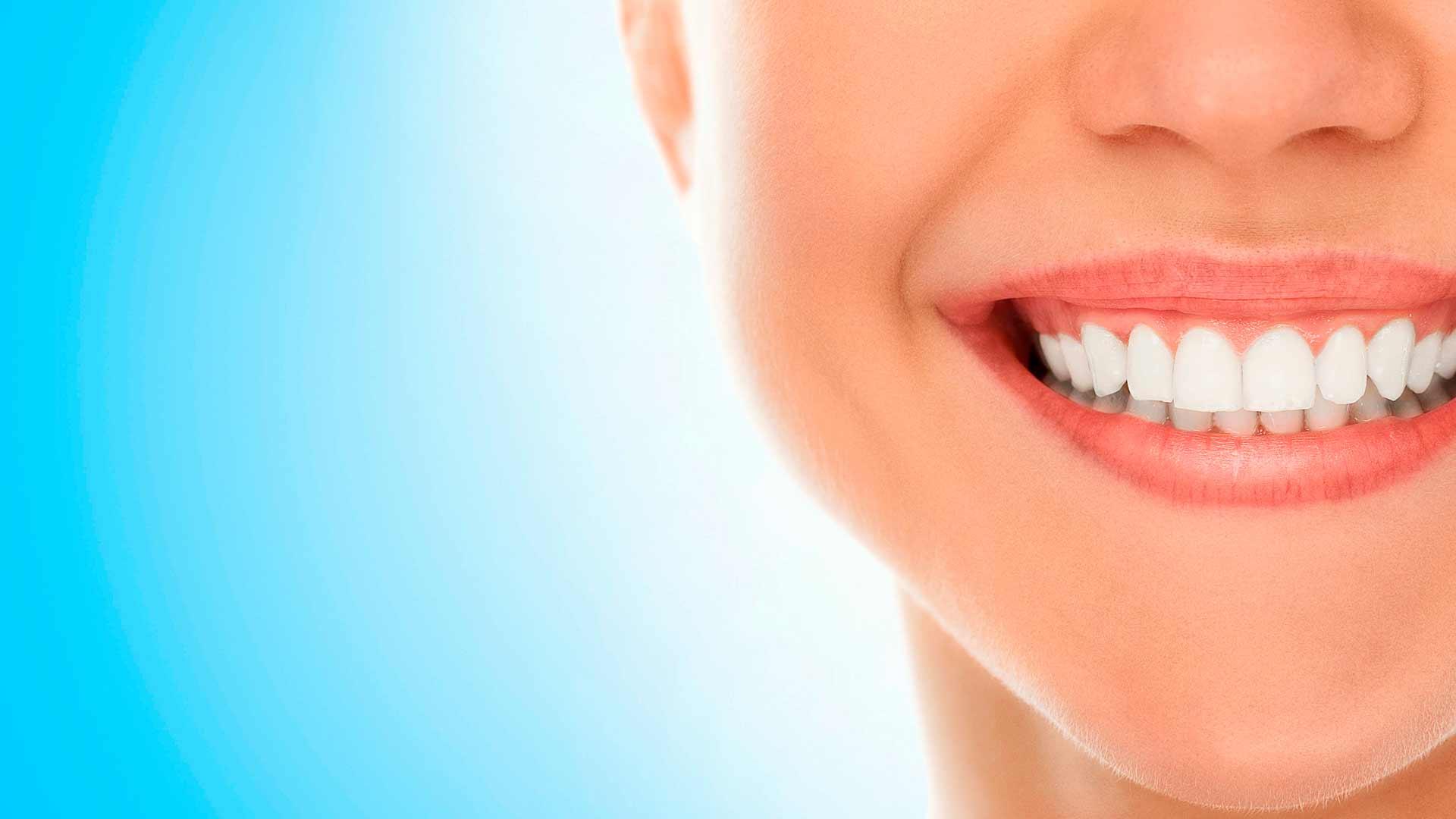 Visita a tu dentista habitualmente y mantén tus encías sanas para evitar la Gingivitis