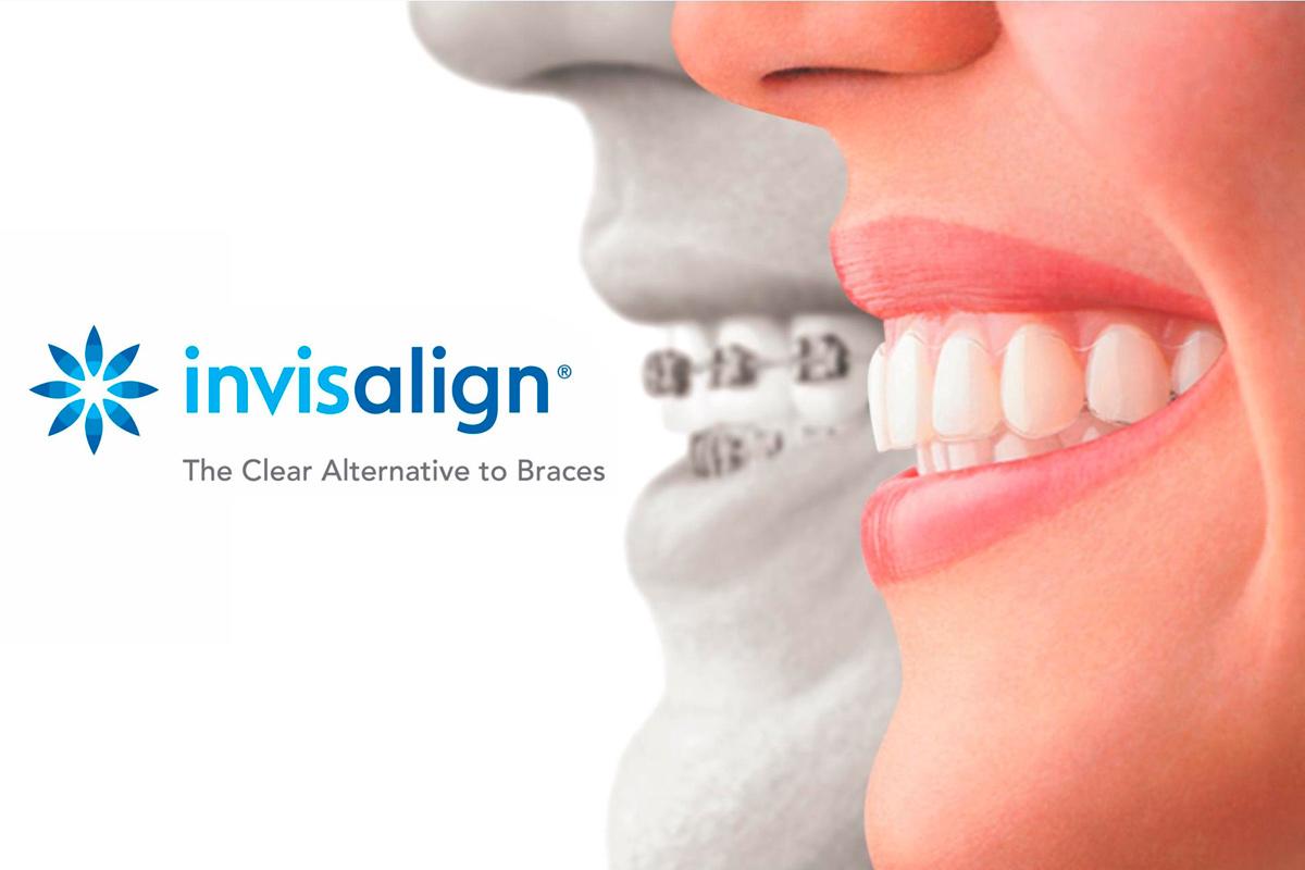 Este mes de Julio consigue tu ortodoncia Invisalign al mejor precio con la Clínica Dental Cuadrado