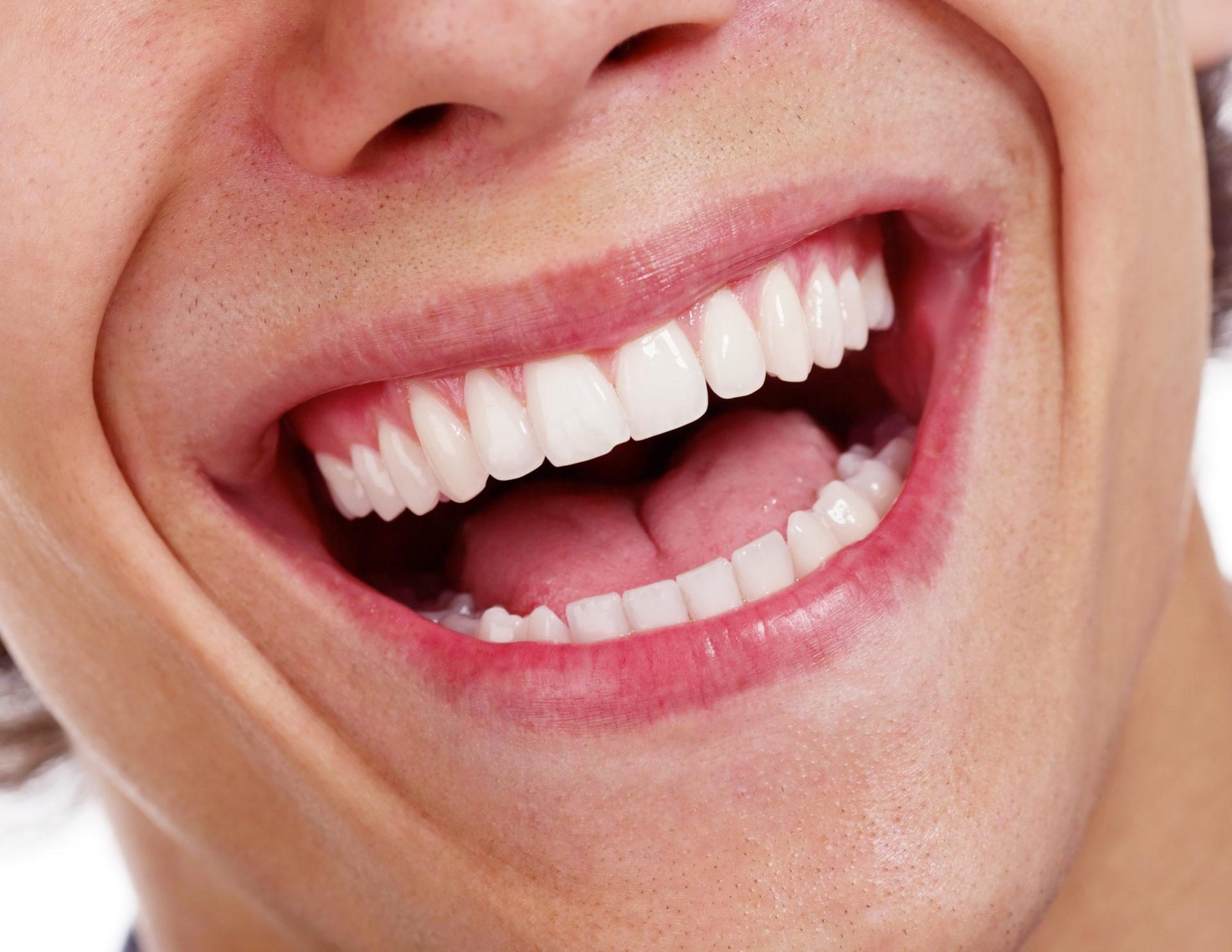 ¿Por qué es tan importante tener unas encías bien sanas?