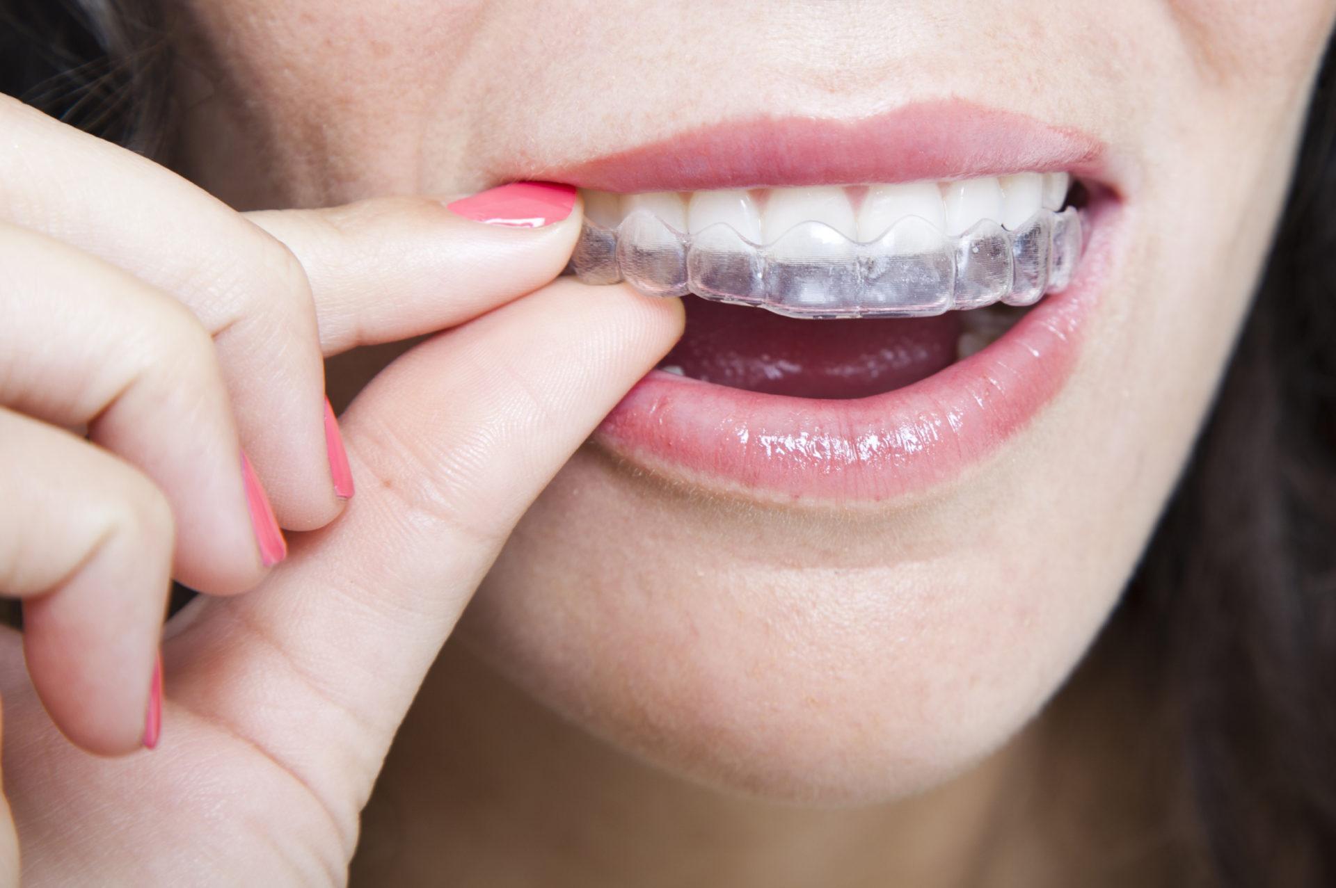 Durante este mes de septiembre también puedes conseguir tu ortodoncia Invisalign al mejor precio en la Clínica Dental Cuadrado