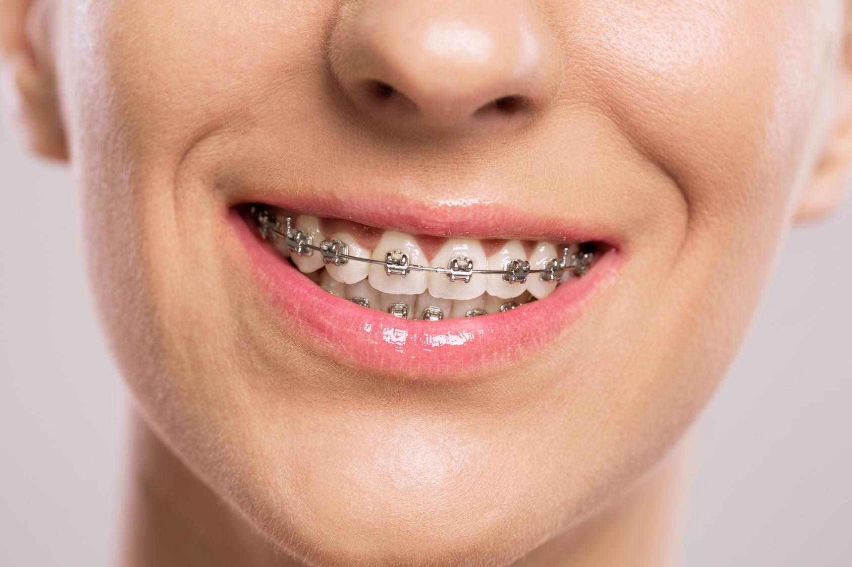 Este mes de octubre vuelven las fantásticas promociones de la Clínica Dental Cuadrado