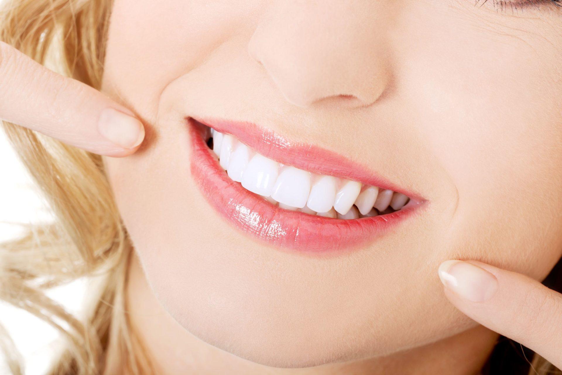 El blanqueamiento dental: la mejor opción para lucir una bonita sonrisa