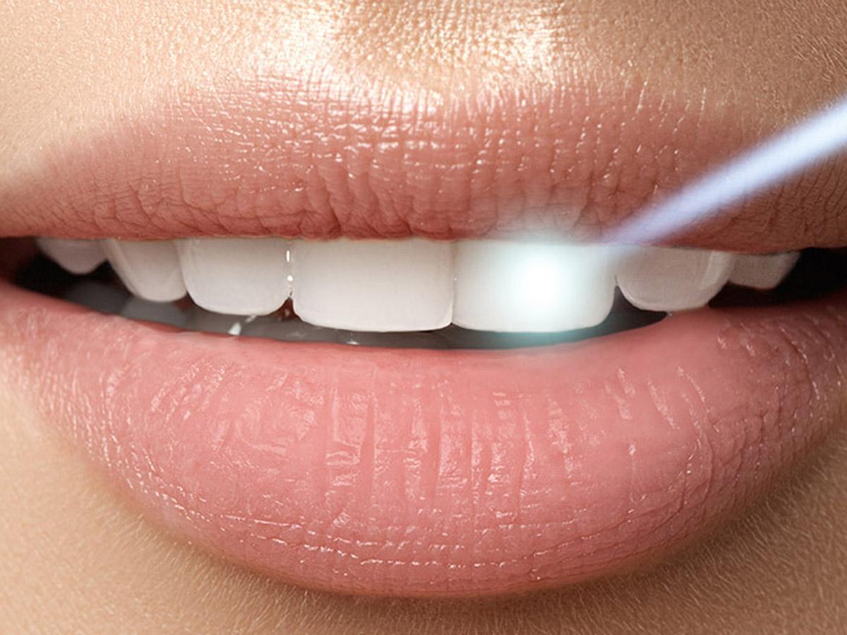 ¿Estás pensando en realizarte un blanqueamiento dental? Ven a la Clínica Dental Cuadrado