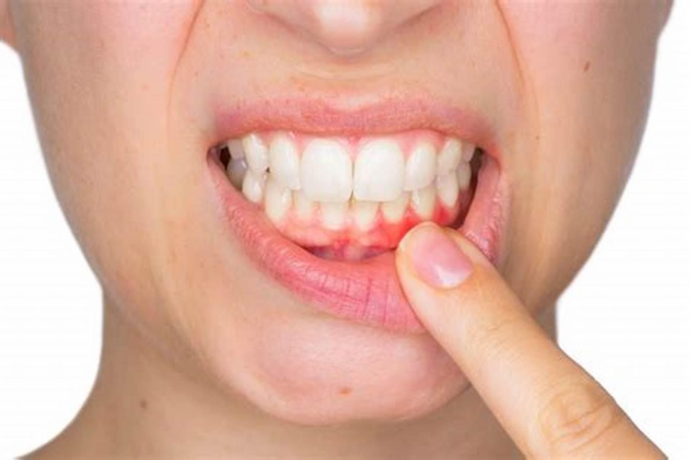 ¡Cuidado con las enfermedades periodontales!