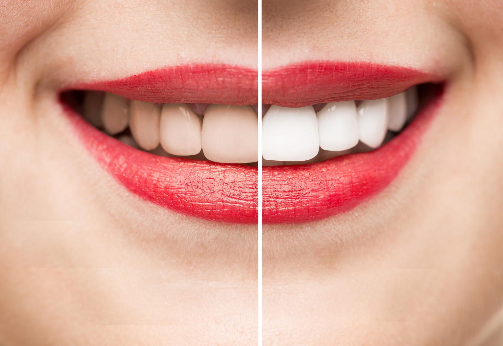 Otra sonrisa diferente es posible con el kit de blanqueamiento Opalescence