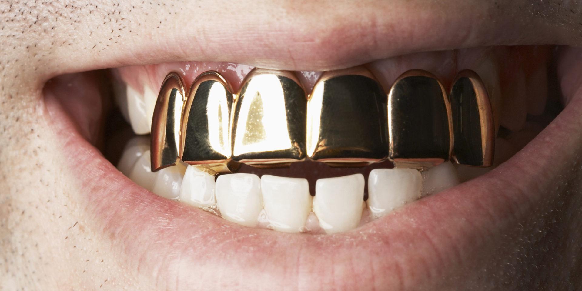 Cuidado con la moda de las fundas de oro, plata o platino