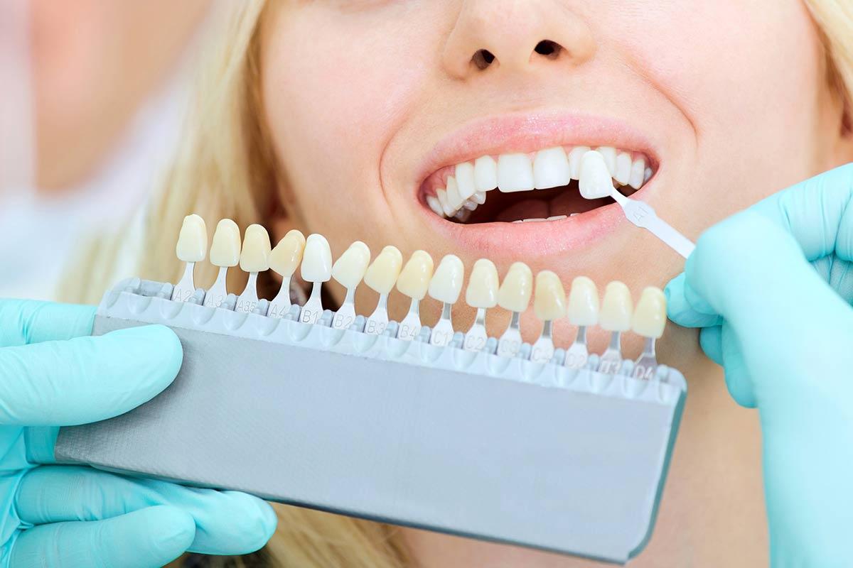 Que no te engañen: los tratamientos de blanqueamiento dental sólo deben ser hechos por especialistas