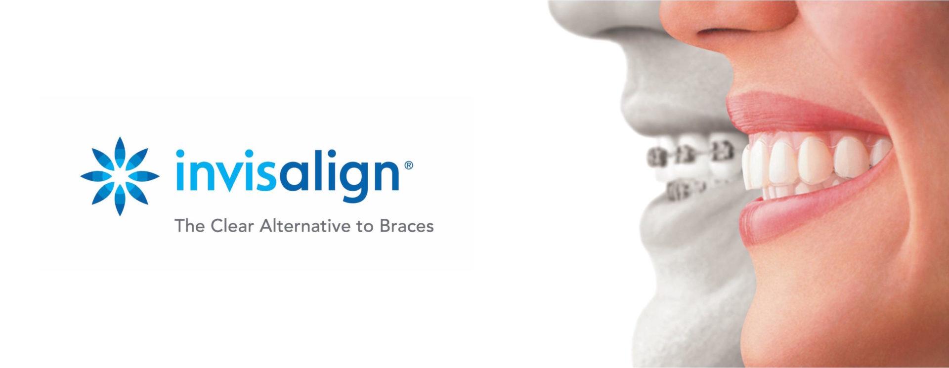 Invisalign, la ortodoncia invisible que eligen cada vez más pacientes