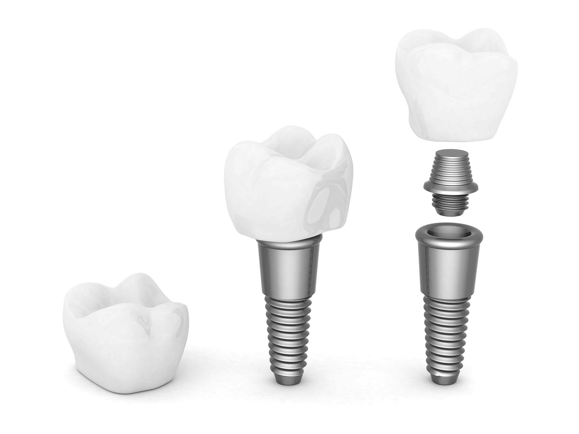 Más ventajas del uso de los implantes dentales