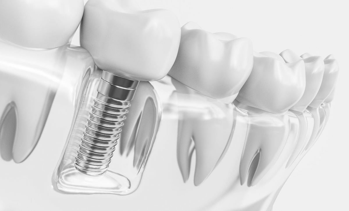 Descubre las principales ventajas que presentan los implantes dentales