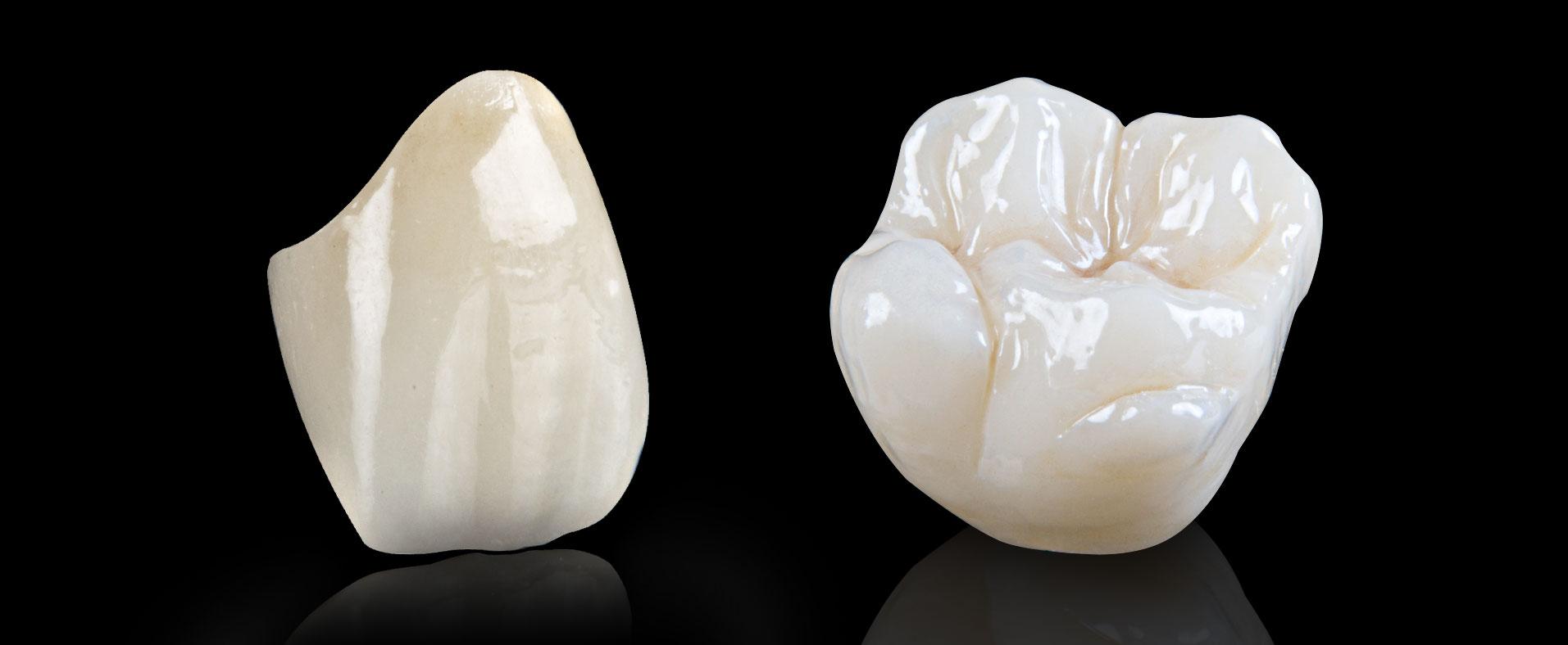 Zirconio Monolítico, un material fundamental para la odontología moderna