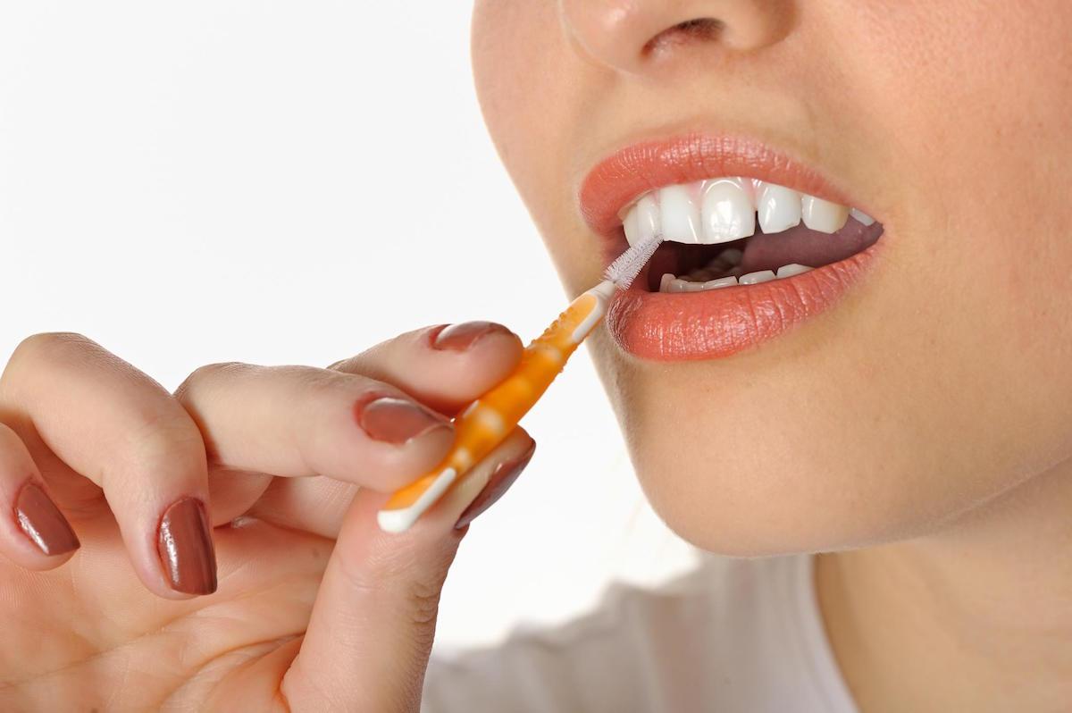¿Por qué puede ser interesante utilizar un cepillo interproximal como parte de nuestra higiene bucal?