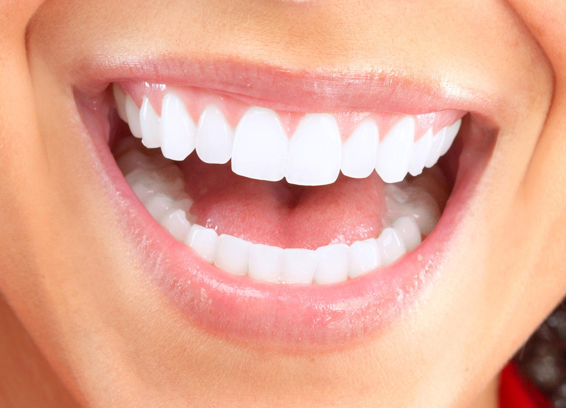 ¿Aún tienes dudas sobre los implantes dentales? ¡Nosotros te las despejamos!