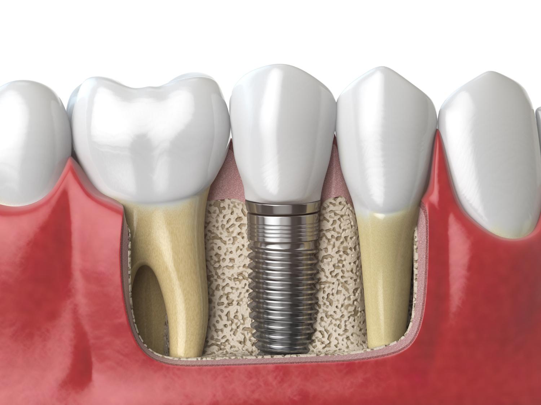 Implantes dentales…un tratamiento lleno de ventajas y beneficios