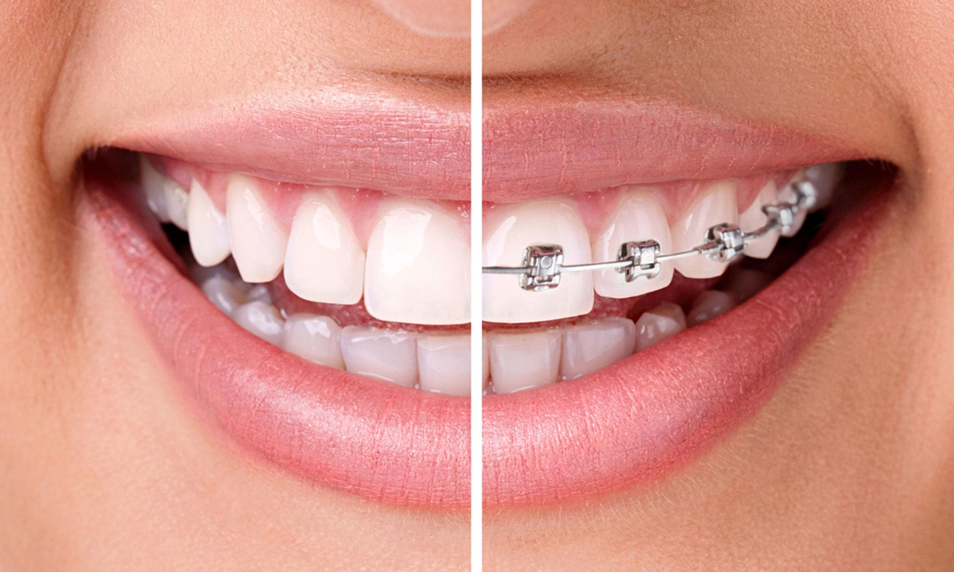 ¿Usar una ortodoncia tiene ventajas? ¡Definitivamente, sí!