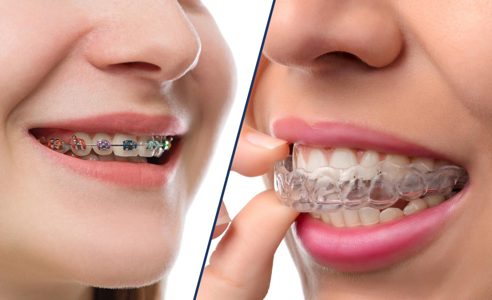¿Qué tipo de ortodoncia elegir? ¿Brackets o aligners transparentes?