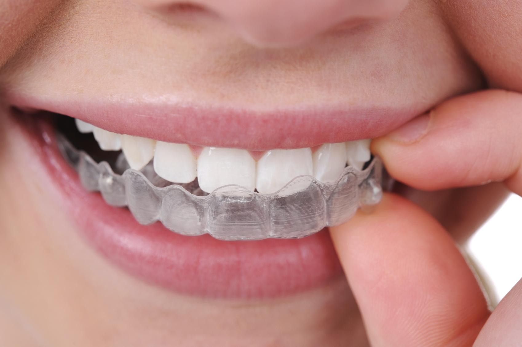 Alinea tus dientes con Invisalign, ¡todo son ventajas!