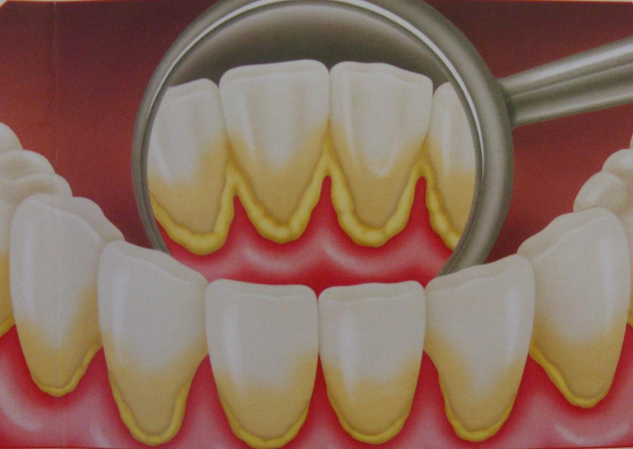 Conociendo al gran enemigo de tus dientes: la placa bacteriana