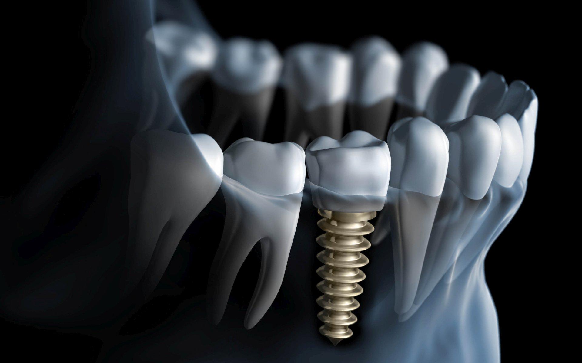El implante dental como un remedio para reducir la pérdida ósea
