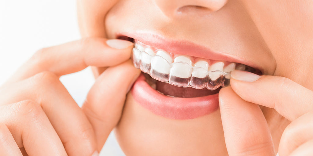¿Dudas sobre Invisalign? ¡En Clínica Dental Cuadrado te las aclaramos todas!
