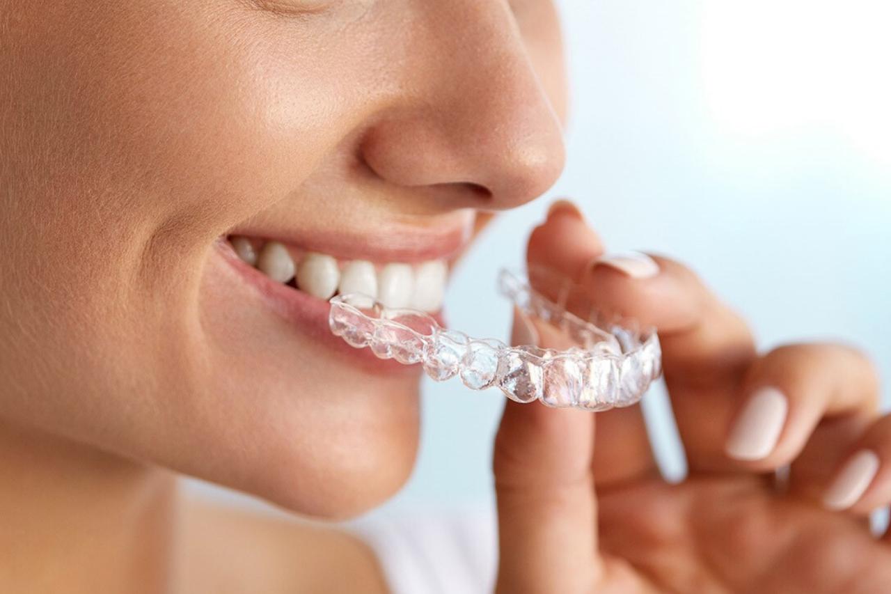 ¿Cómo funciona la tecnología Invisalign? ¡El tratamiento más avanzado para alinear tus dientes!