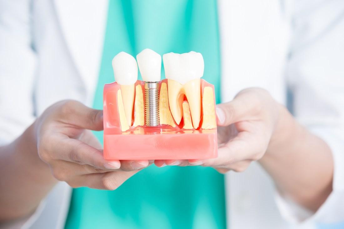 Implantes dentales: un mundo lleno de posibilidades para tu salud y bienestar