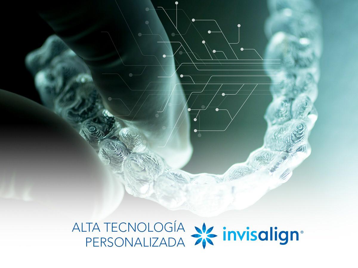 Lo último en tecnología para ortodoncias de la mano de Invisalign