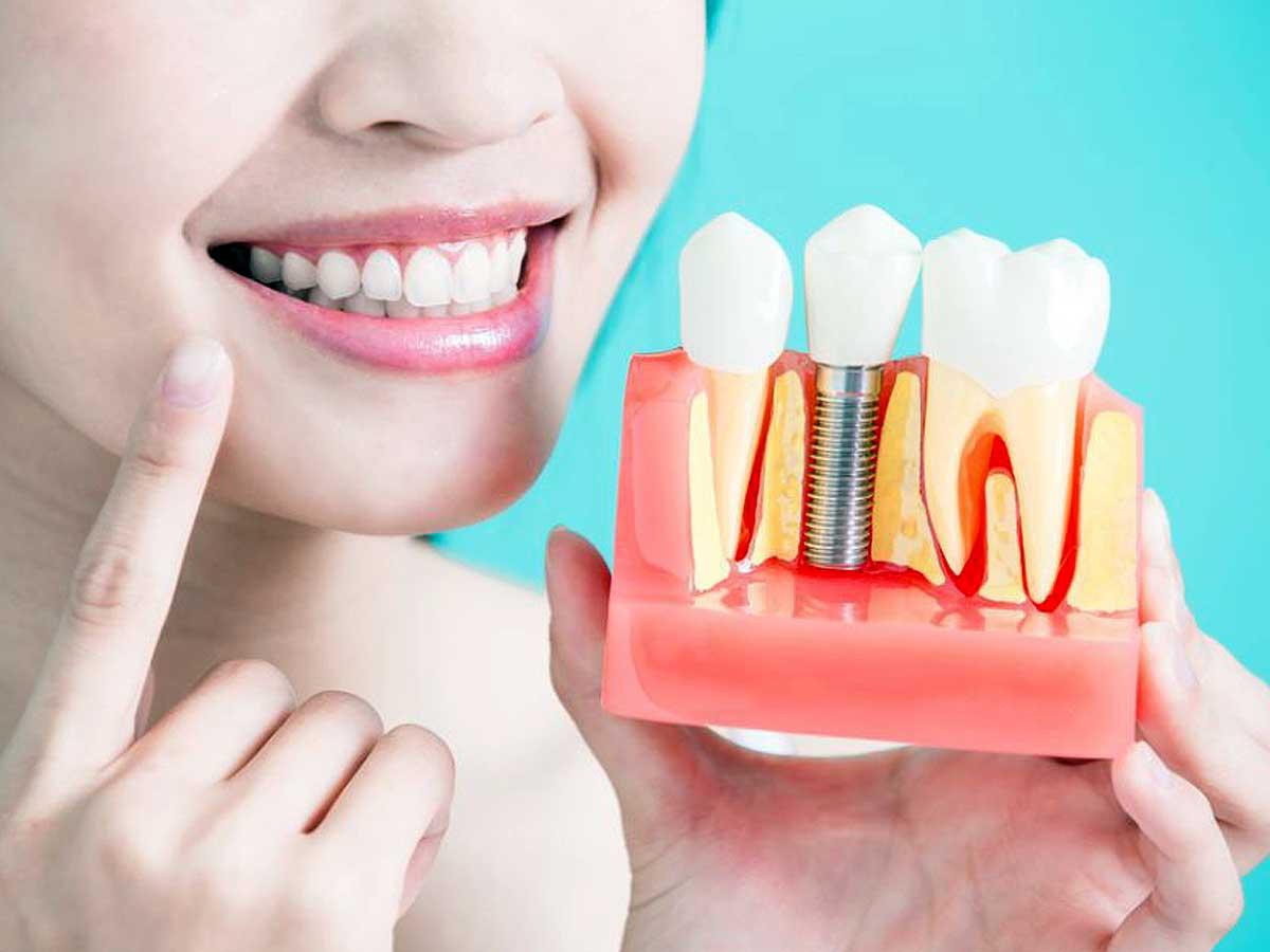 ¿Cómo saber si un implante dental es adecuado para ti?