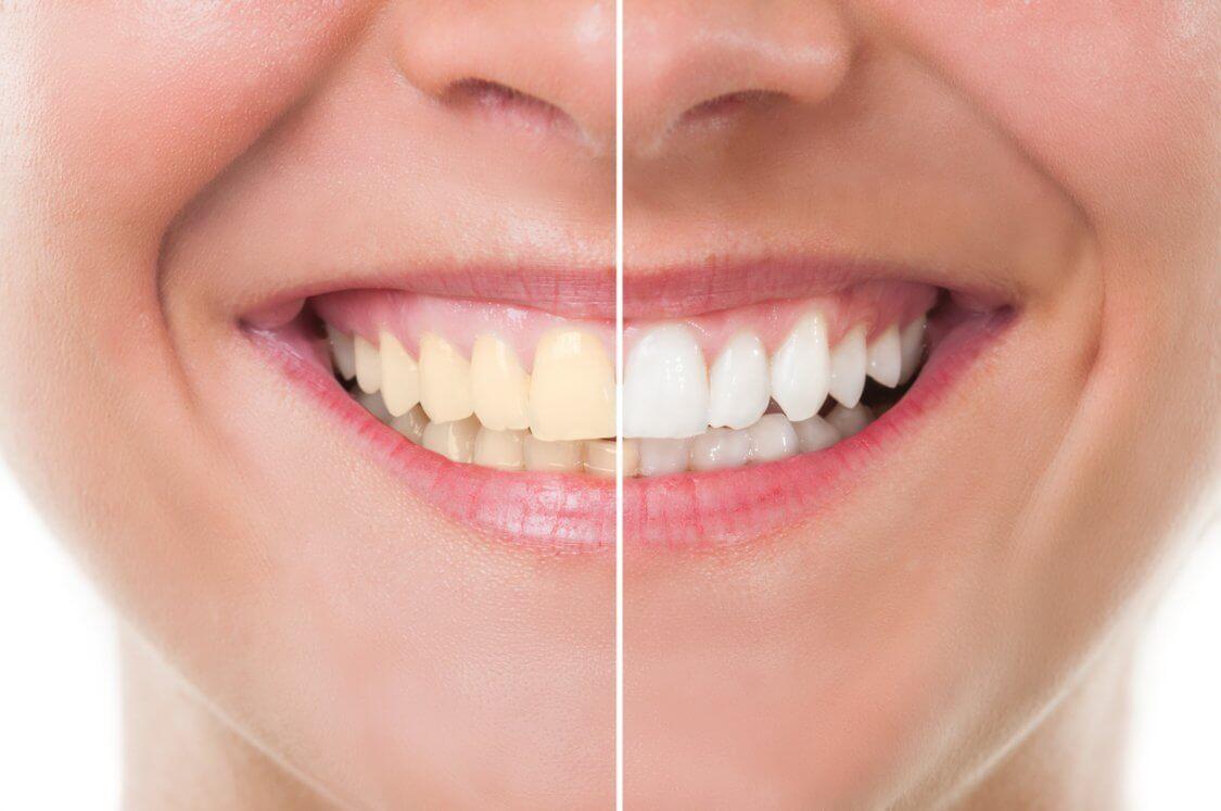 Blanqueamiento dental: un tratamiento eficaz y 100% seguro