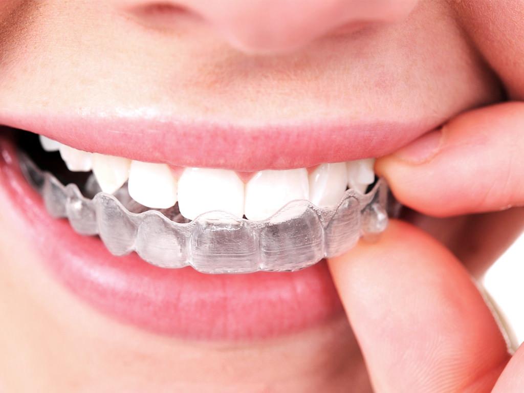 Descubre las ventajas de alinear tus dientes con aligners transparentes
